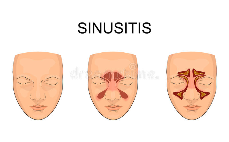 Nasal sinus. inflammation stock illustration