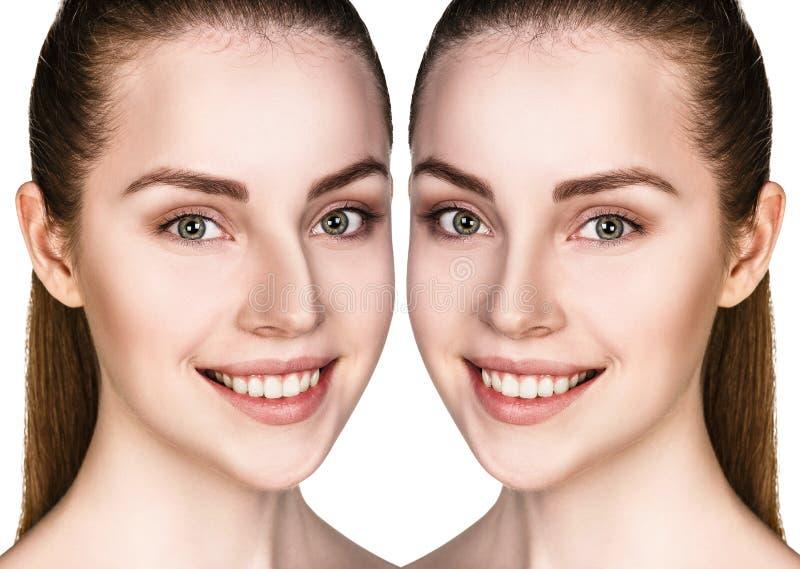 Naso femminile prima e dopo chirurgia immagini stock