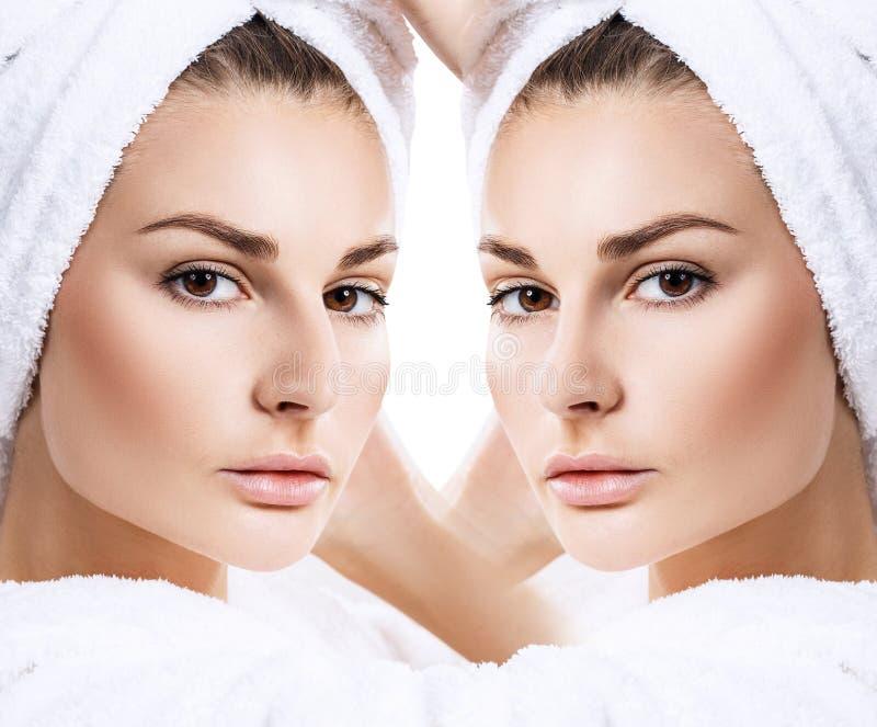 Naso femminile prima e dopo chirurgia estetica fotografie stock