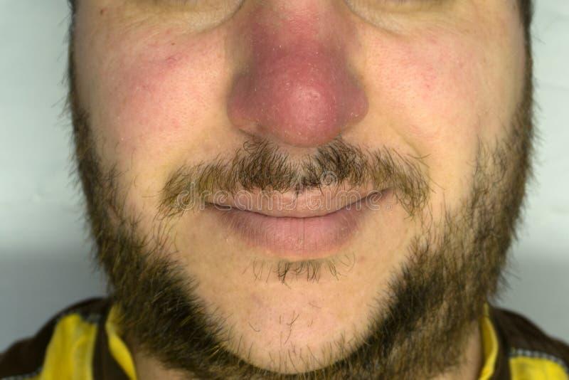 Naso rosso, uomo non rasato ed i suoi baffi fotografia stock libera da diritti