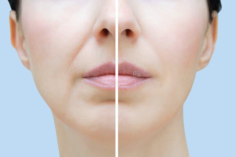 Nasolabialfalten in der kaukasischen Frau Nahes hohes des Gesichtes Vorher und nachher lizenzfreies stockfoto