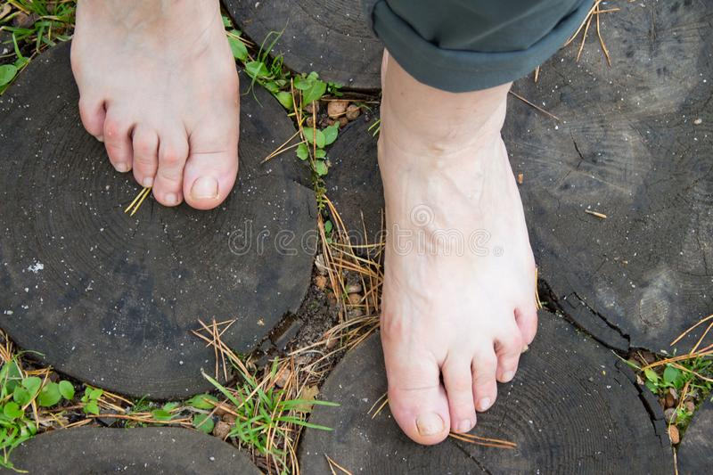 Natural physical therapy for flat feet. Female feet on the log r stock images