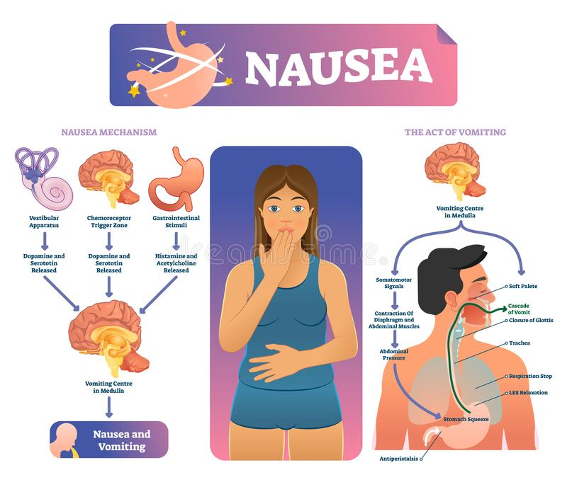 Nausea vector illustration. Labeled medical vomiting explanation scheme. vector illustration