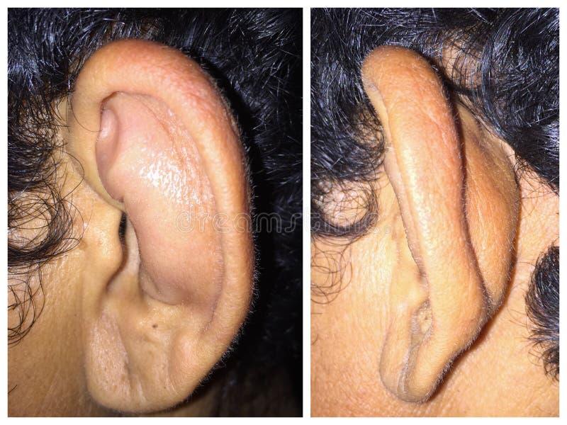 Nauszny Haematoma Prawy ucho w azjaty, Myanmar Męskim Dorosłym pacjencie, Frontowy widok i Lateral widok - zdjęcia royalty free