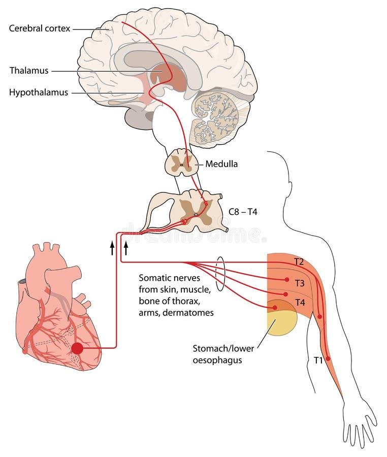 Nawiązywać do ból sygnalizuje serce i klatkę piersiową ilustracji