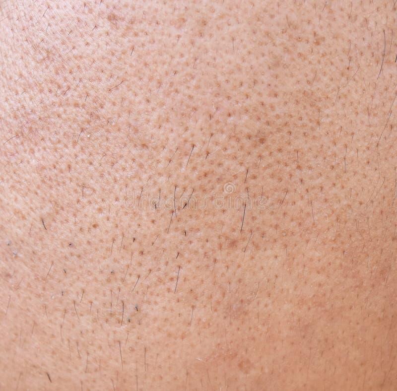 Nawierzchniowa azjatykcia mężczyzna twarzy skóra obraz stock