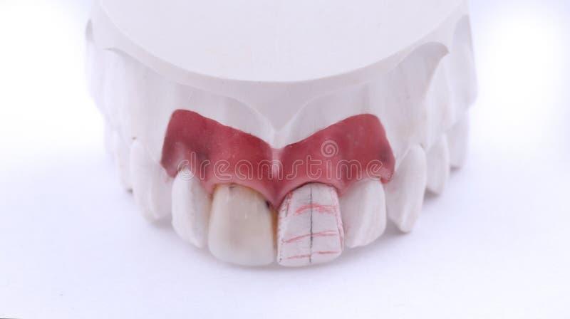 Nawoskuje deseniowych zębów stomatologiczne korony na modelu, metalu swobodnie - frontowy widok Ceramiczni przodów forniry odizol obrazy stock