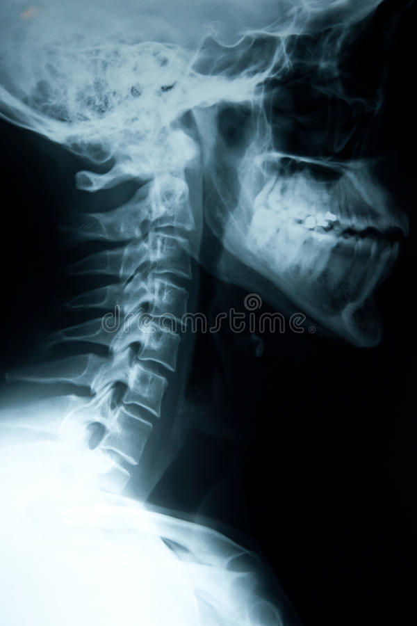 Neck injury royalty free stock images