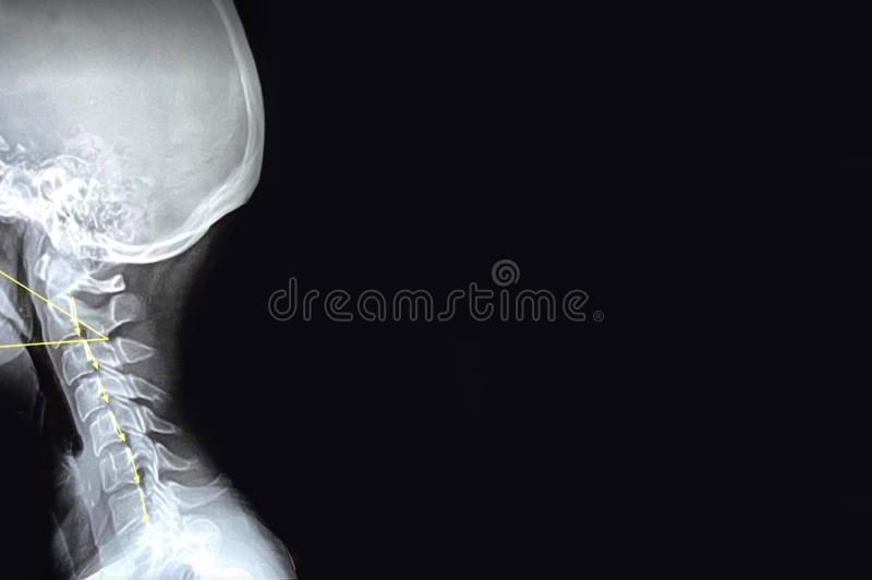Neck Injury X-Ray Image. A X-ray image for a Neck Injury. Great image for background, business card or advertising for a chiropractor or health care professional stock images