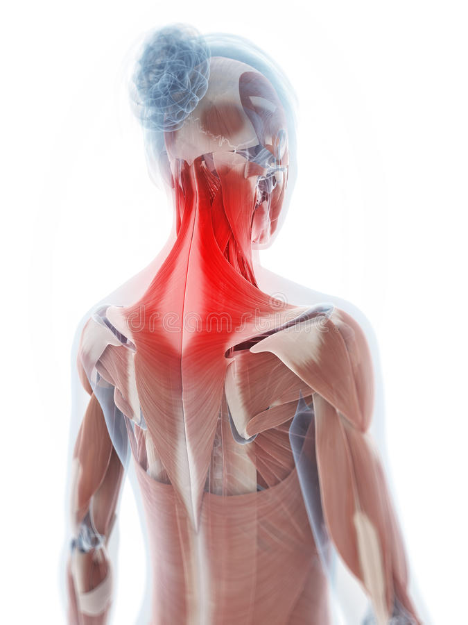 The neck musculature. 3d rendered illustration of a painful neck royalty free illustration