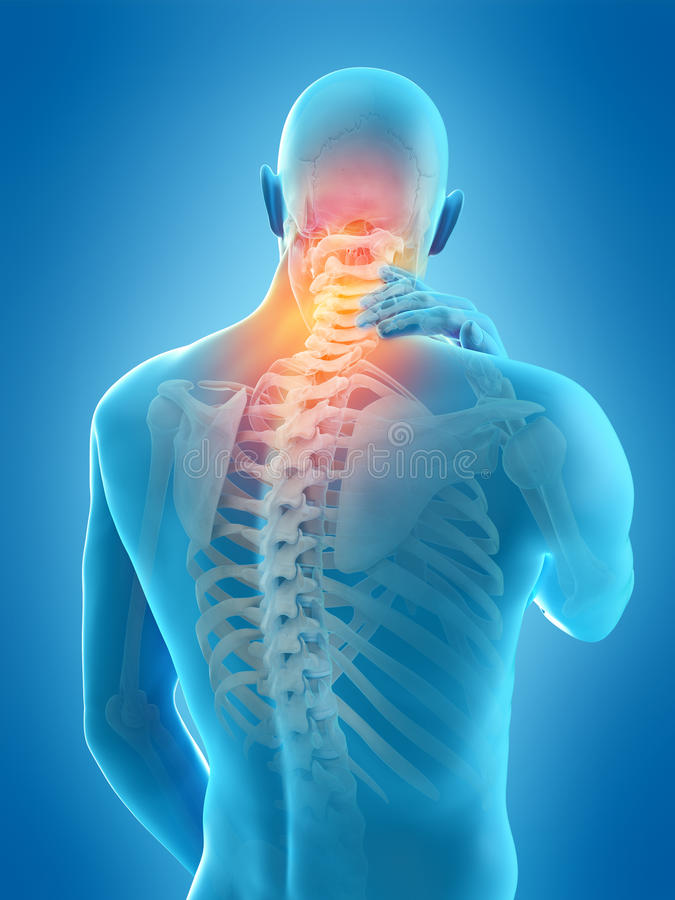 Neck pain. Medically accurate 3d illustration of neck pain stock illustration