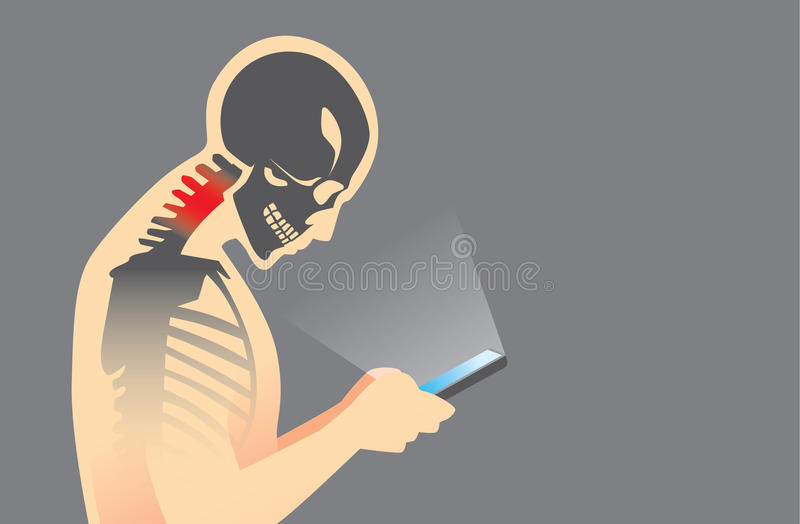 Neck Pain from Smartphone royalty free illustration