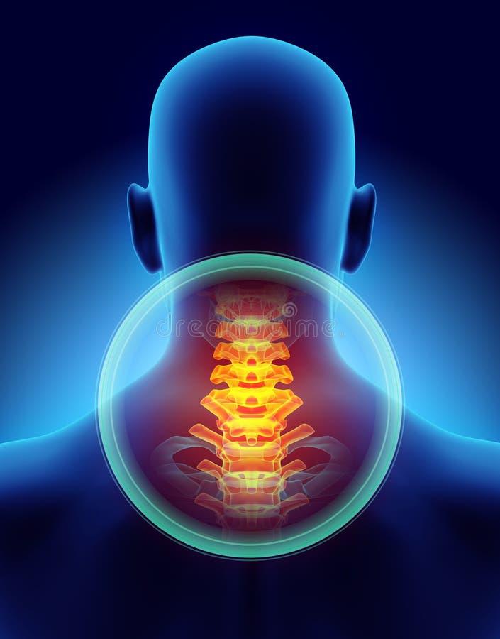 Neck painful - cervica spine skeleton x-ray, 3D illustration. royalty free illustration