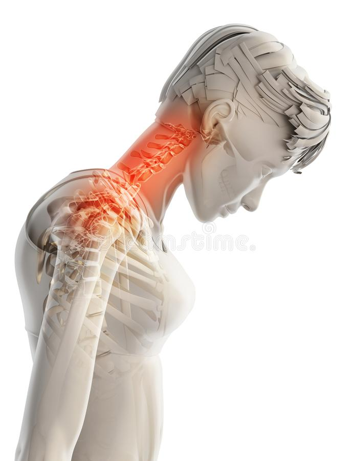 Neck painful - cervical spine skeleton x-ray, 3D illustration. 3D illustration, neck painful - cervical spine skeleton x-ray, medical concept vector illustration