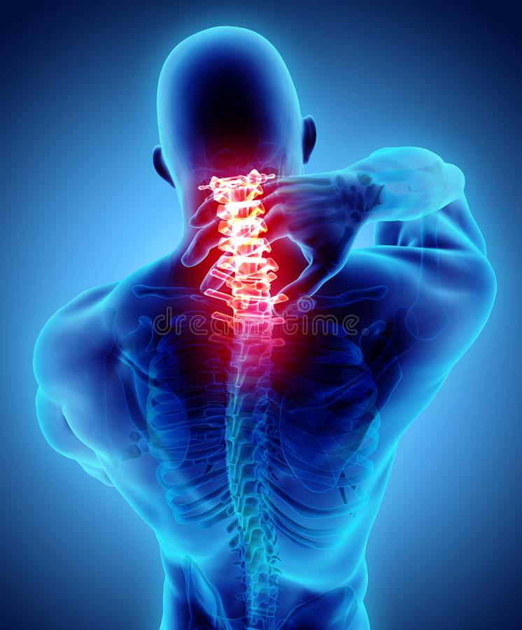 Neck painful - cervical spine skeleton x-ray, 3D illustration. 3D illustration, neck painful - cervical spine skeleton x-ray, medical concept stock illustration
