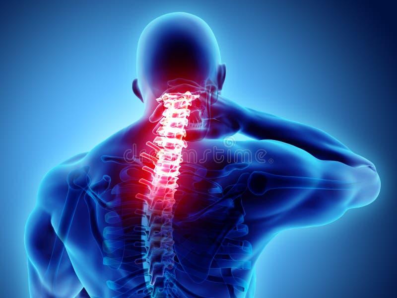 Neck Painful - Cervical Spine Skeleton X-ray, 3D Illustration. Stock ...