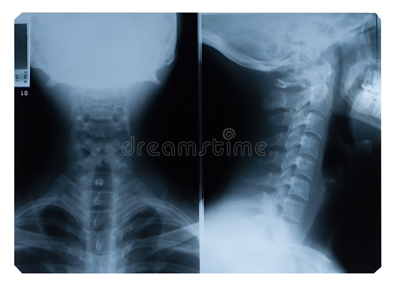 Neck X-Ray front and side stock images