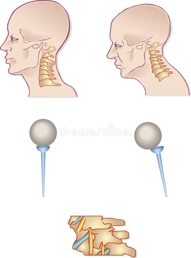 Neck spine vector illustration