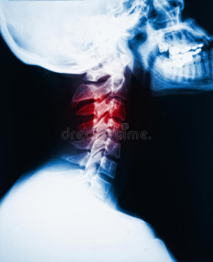 Free Neck X-ray And Pain Stock Photography - 18166412