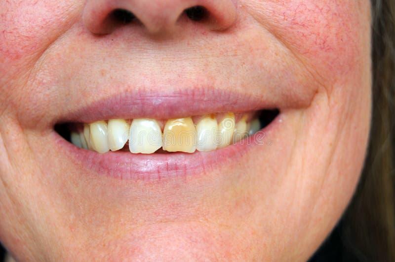 nedfläckad tand royaltyfri fotografi