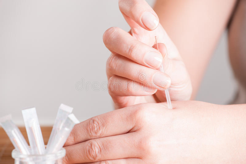 Download Needeling Acupuncture stock image. Image of needle, closeup - 28025593
