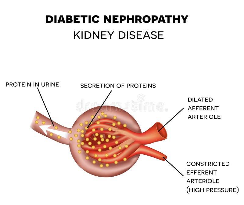 Nefropatia do diabético, anatomia do glomérulo ilustração royalty free