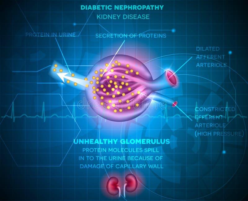 Nefropatia do diabético, doença renal ilustração royalty free