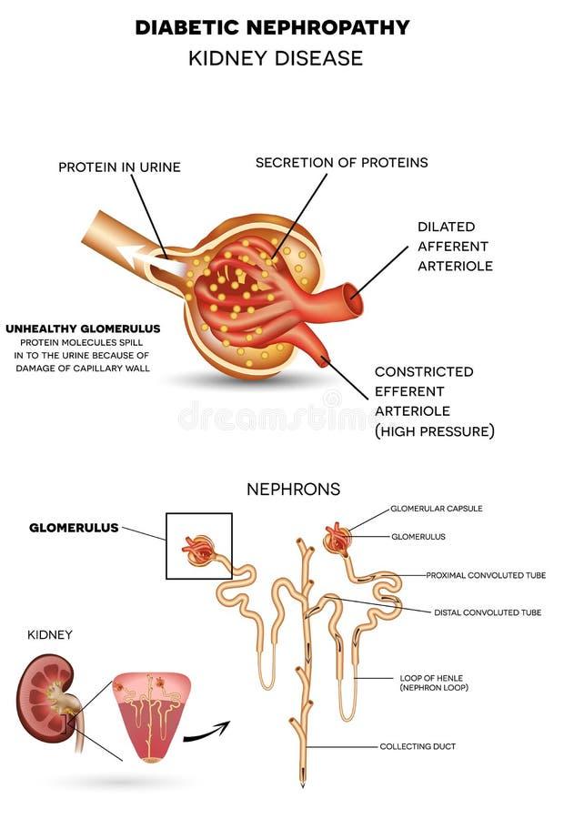 Nefropatia do diabético, doença renal ilustração do vetor