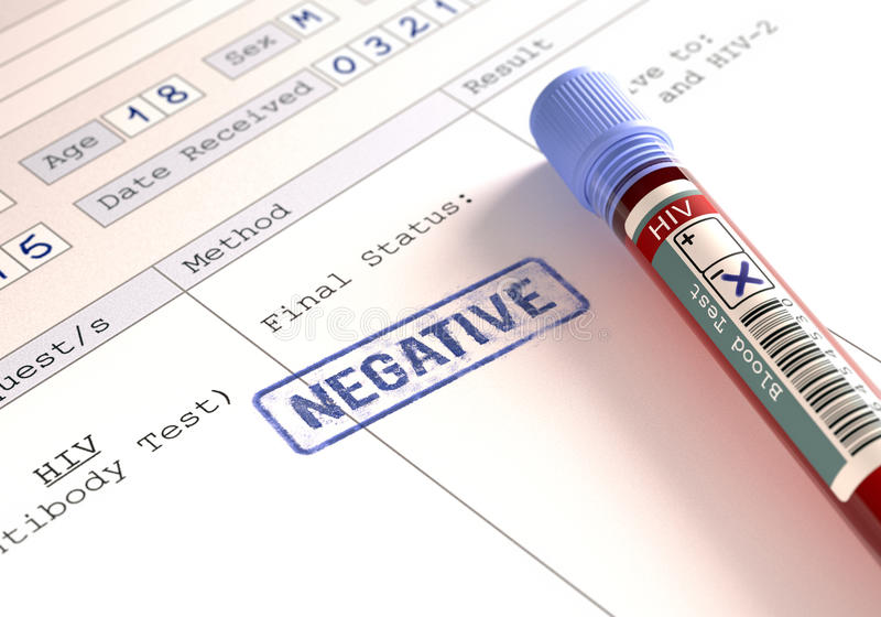 negativ positive för hiv fotografering för bildbyråer
