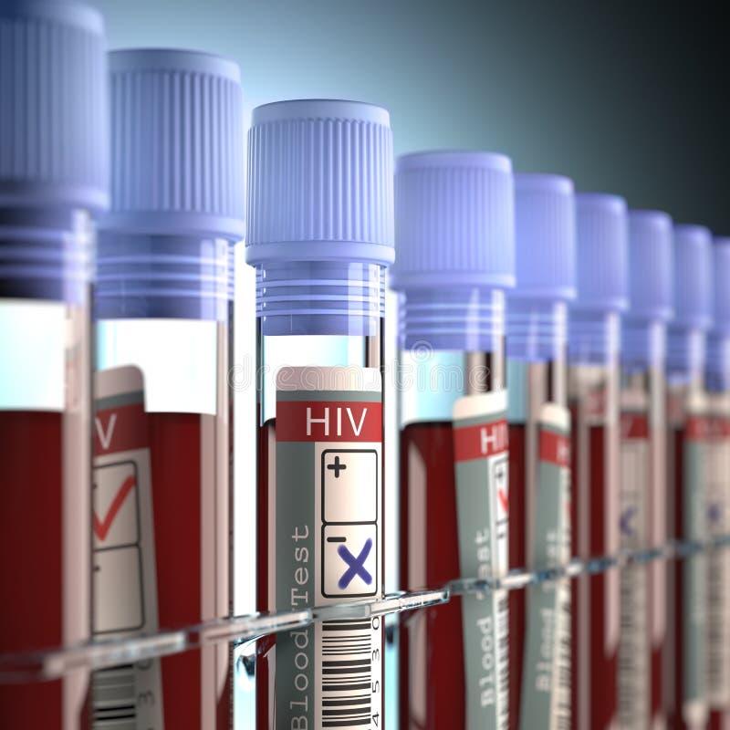 negativ positive för hiv royaltyfri bild
