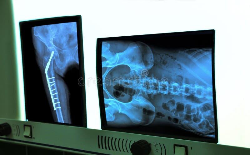 negatoscope con i raggi x dell'anca e della spina dorsale fotografia stock libera da diritti