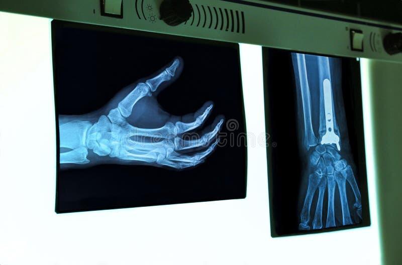 negatoscope met röntgenstraal van hand royalty-vrije stock foto's