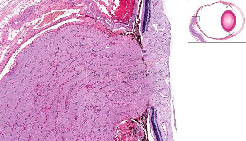 Nerf optique et rétine images stock