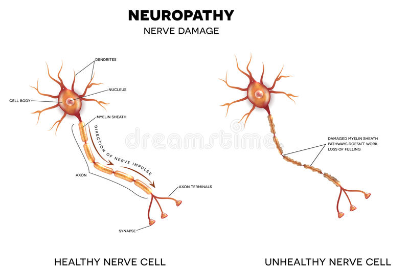 A diagram showing a healhty nerve cell and an unhealthy nerve cell