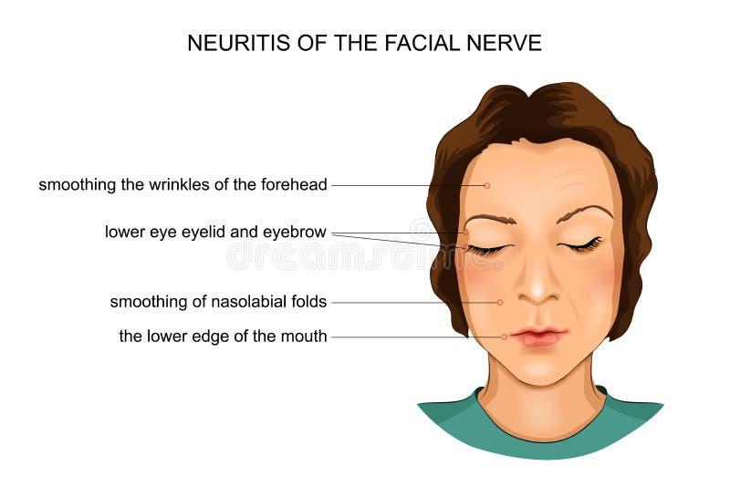 Nervinflammation av den ansikts- nerven stock illustrationer