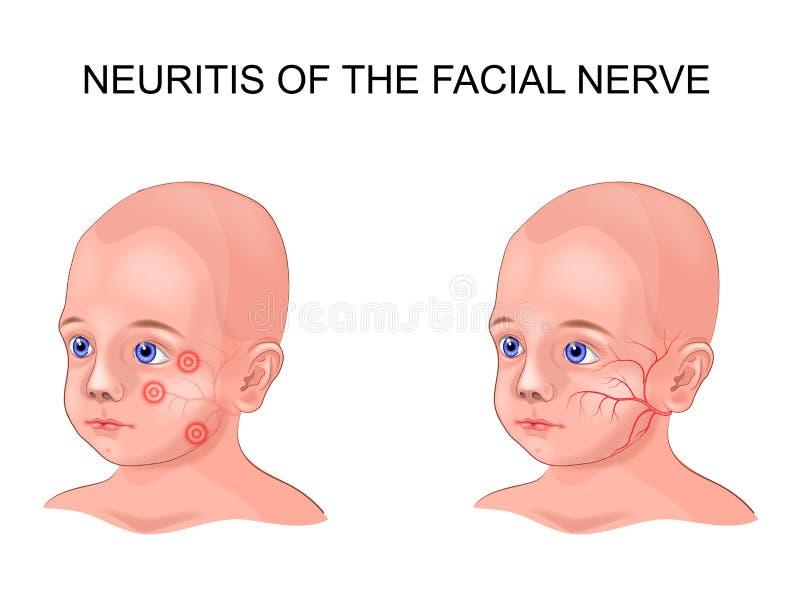 Nervinflammation för ansikts- nerv i ett barn stock illustrationer