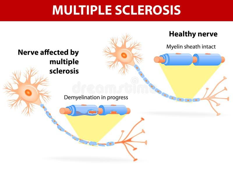 Nervo colpito dalla sclerosi a placche illustrazione di stock