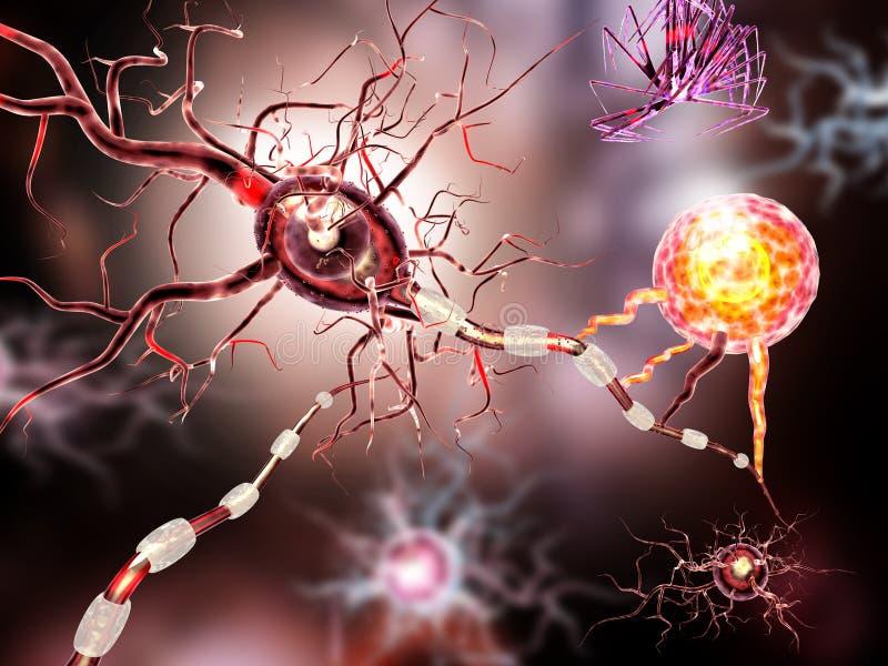 Nerw komórki, pojęcie dla Neurologicznych chorob, bolaki i móżdżkowa operacja, ilustracja wektor