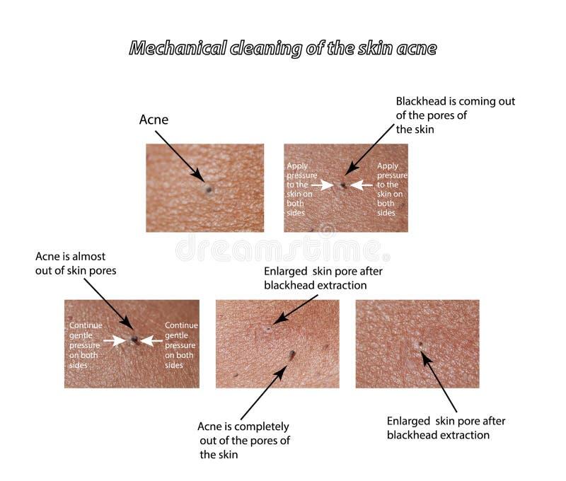 Nettoyage mécanique de la peau de l'acné illustration de vecteur
