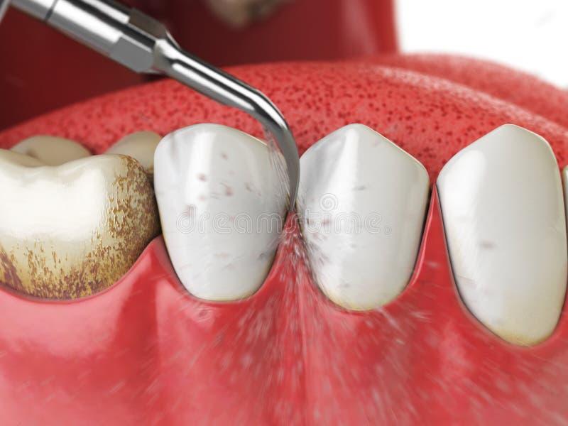 Nettoyage professionnel de dents Dents ultrasoniques nettoyant la machine d illustration stock