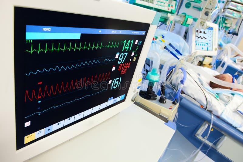 Neugeborenes ICU mit ECG Überwachungsgerät stockbilder