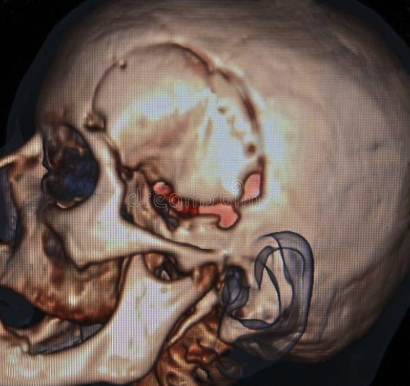 Neurochirurgia, CT zdjęcia royalty free