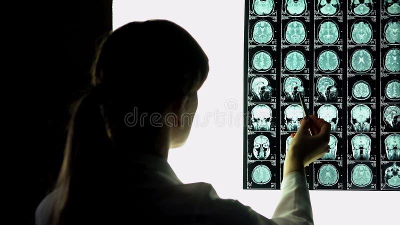 Neurocirurgião que olha o raio X paciente do cérebro, imagem apontando, estágio do hospital imagem de stock royalty free