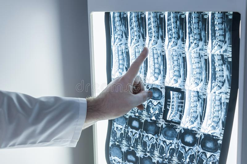 Neurologe und Chirurg überprüfen Dornbild eines Patienten stockbilder