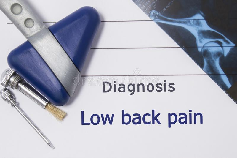 Neurological diagnosis of Low Back Pain. Neurologist directory, where is printed diagnosis Low Back Pain, lies on workplace with M. RI image and neurological stock photography