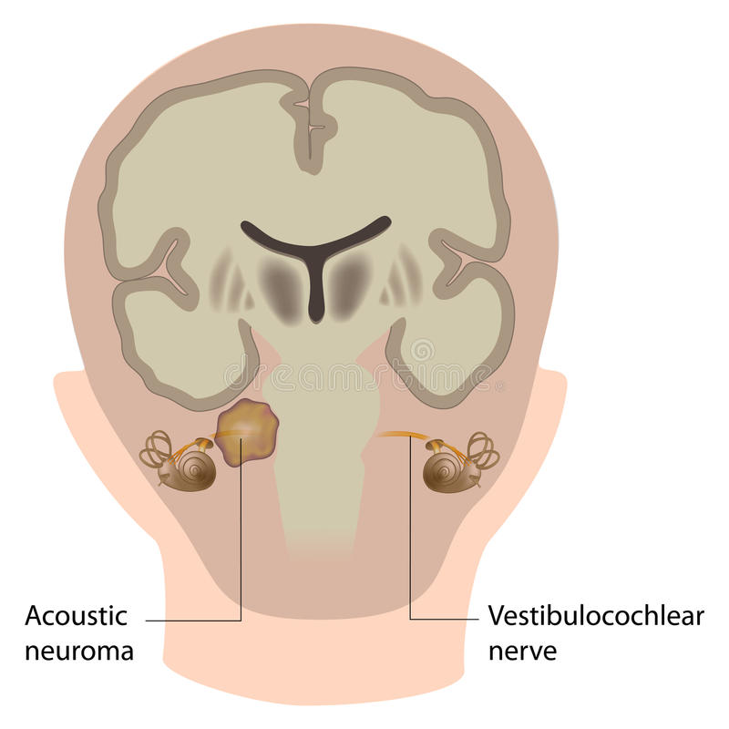 Neuroma acustico illustrazione vettoriale