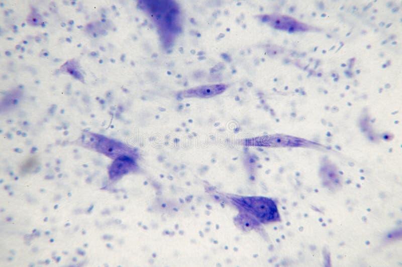 Neuronas en el cerebro fotografía de archivo libre de regalías