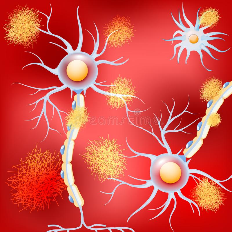 Neurons in the brain with Alzheimer`s disease, and amyloid plaques royalty free illustration