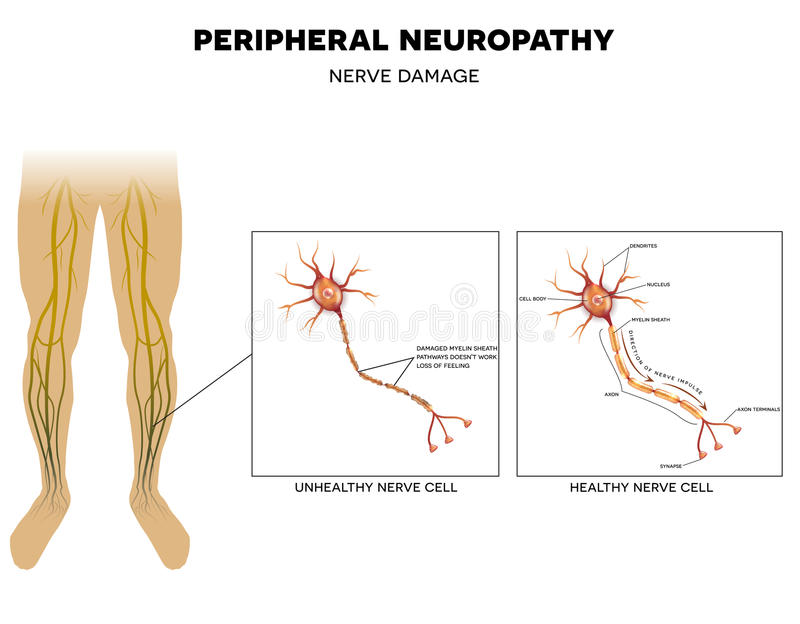 Neuropathy nervskada royaltyfri illustrationer