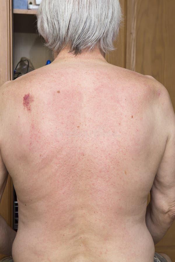 Nevo da pele da parte traseira imagens de stock